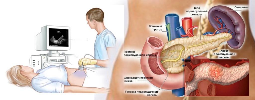 УЗИ органов брюшной полости: показания, подготовка, техника проведения