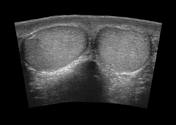 УЗИ-диагностика органов мошонки