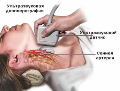 УЗИ сосудов шеи и головного мозга