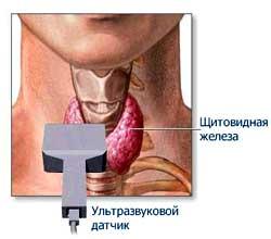 УЗИ щитовидной железы: что показывает и как подготовиться